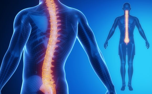 Scoliosis And Deformity Treatment